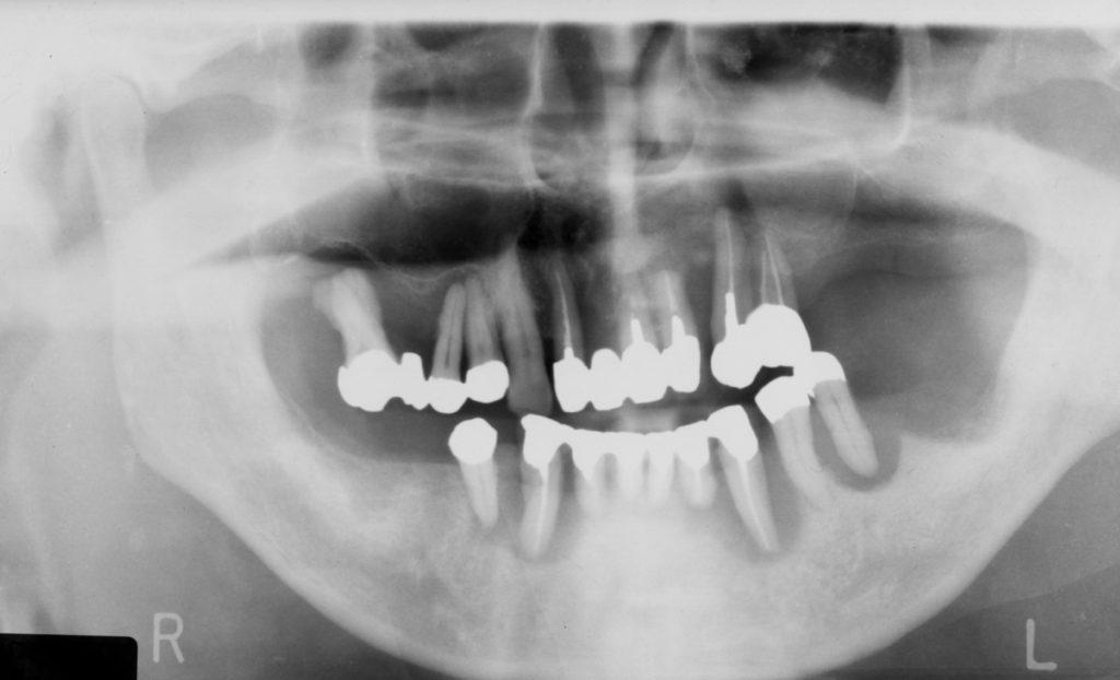 重度歯周病,インプラント