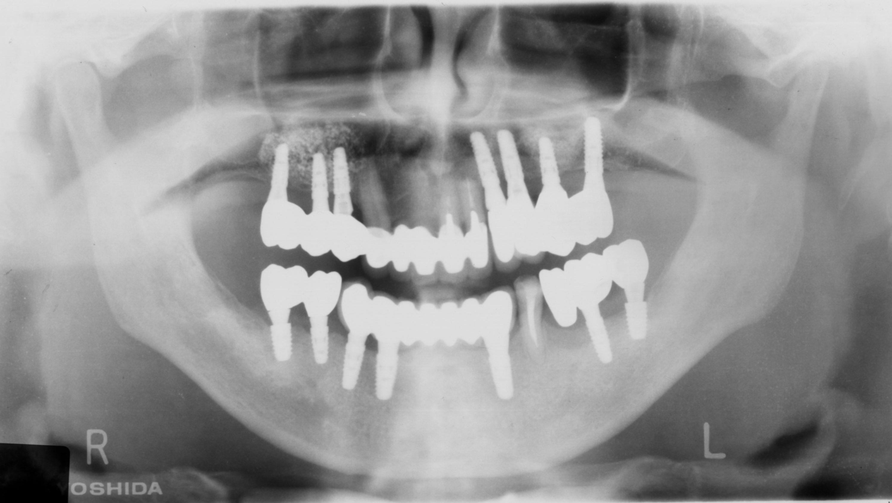 重度歯周病患者のインプラント治療